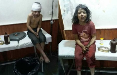 Aleppo injured children